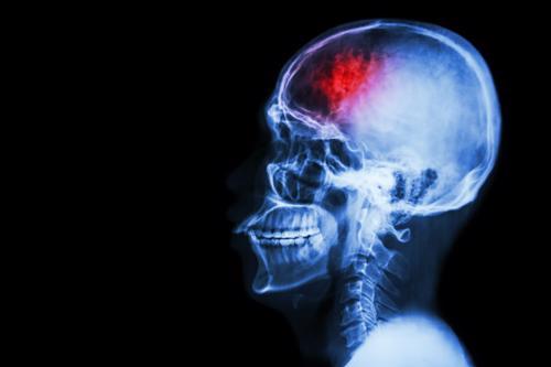 An MRI scan highlighting a brain injury