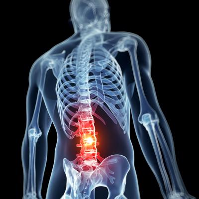 File your claim with our Atlanta spinal cord injury lawyer.